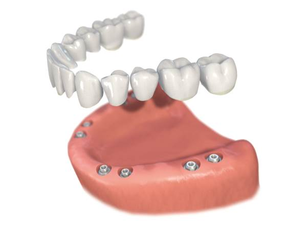 Implantatgetragene, festsitzende Zahnreihe/ implant-supported, permanent row of teeth
